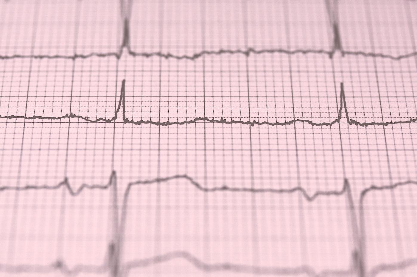 Exames Cardiológicos: Eletrocardiograma – Coração Vivo Informa